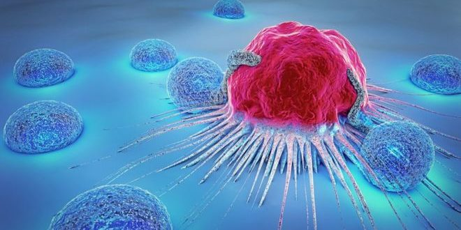 What Are the Signs and Symptoms of Cancer?